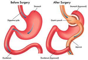 عمل جراحی بای پس معده