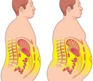 عوارض بیماری چاقی مفرط