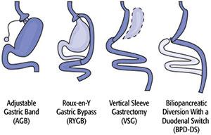 روش ها و انواع جراحی های چاقی